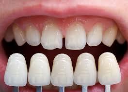 Clínica estética dental: especialistas a tu servicio